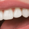 Эстетическая стоматология – красота Ваших зубов надолго!