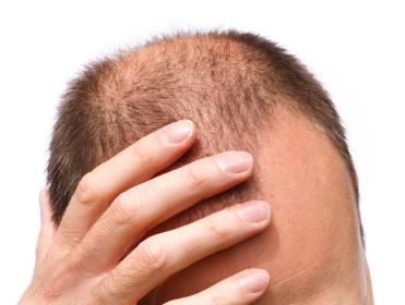 Если выпадают волосы во время беременности, что
