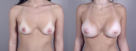 Вид груди до и после пластической операции