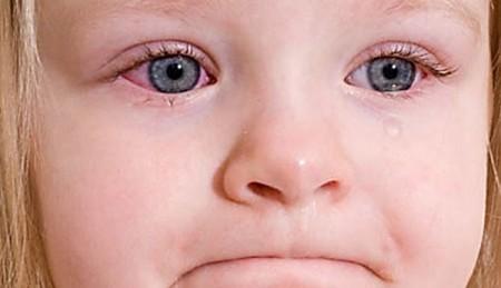 Фотография аллергического конъюнктивита