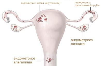 Распространение эндометрия при эндометриозе