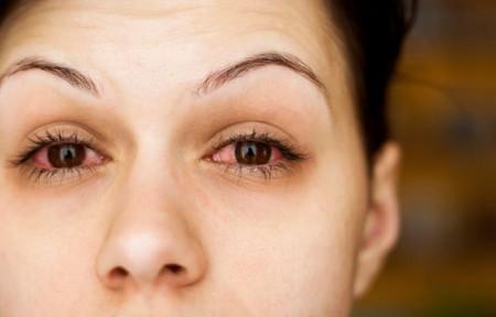 Фотография глаз при конъюнктивите