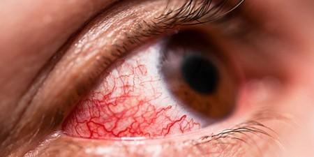 Фотография вирусного конъюнктивита