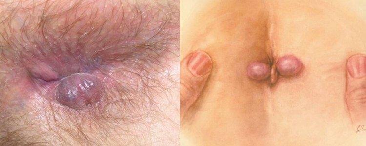 Вид геморроидальных шишек наружного геммороя