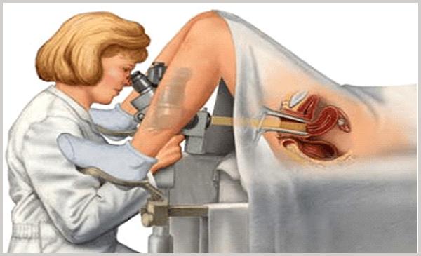 Кольпоскопия - визуальный метод диагностирования эрозии шейки матки