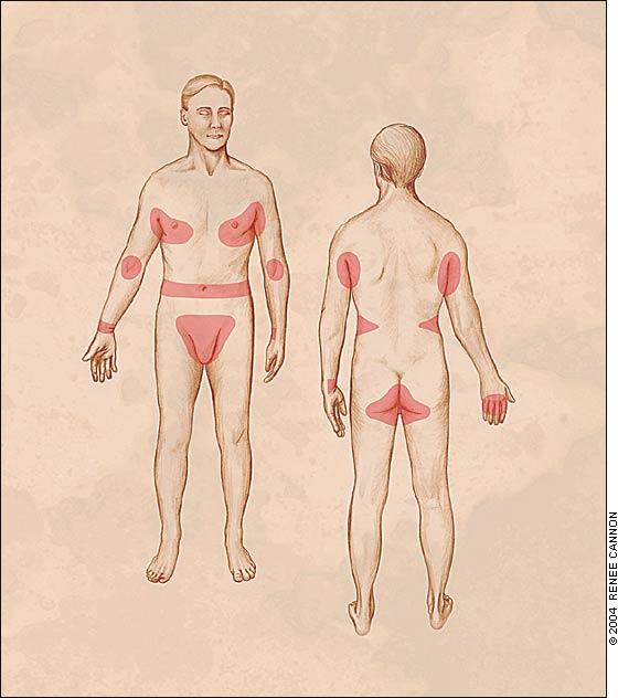 Участки тела, где чаще всего проявляется чесотка.