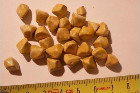 Камни в желчевыводящих путях
