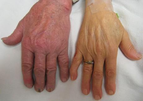 Женщины с тяжелой анемией (справа) в сравнении с нормальной рукой человека (слева).