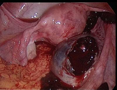Апоплексия правого яичника