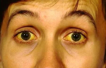 Один из симптомов цирроза печени