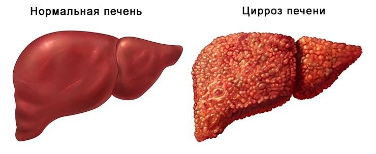 Нормальная печень и цирроз печени