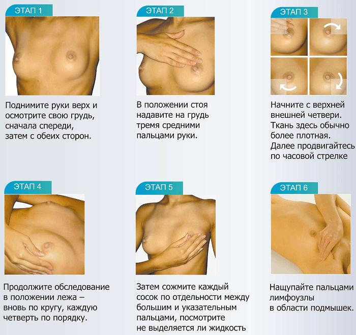 Основные этапы самообследования молочных желез