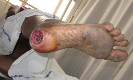 Трофическая язва стопы