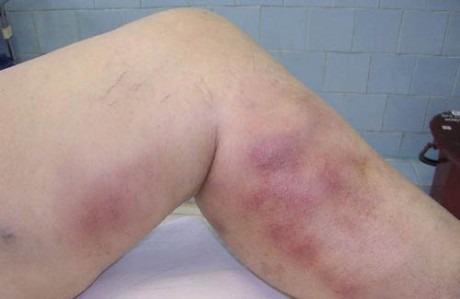 Тромб на ноге лечение в домашних условиях