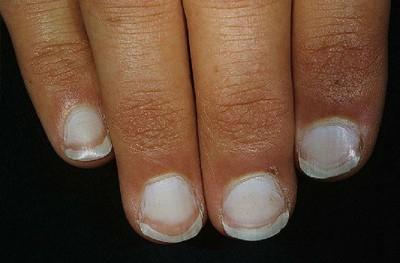 Ломкость и расслаиваемость ногтей