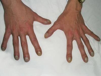 Происходит утолщение концевых фаланг пальцев рук по типу барабанных палочек