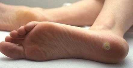Может ли болеть папиллома