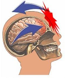 Как происходит сотрясение мозга