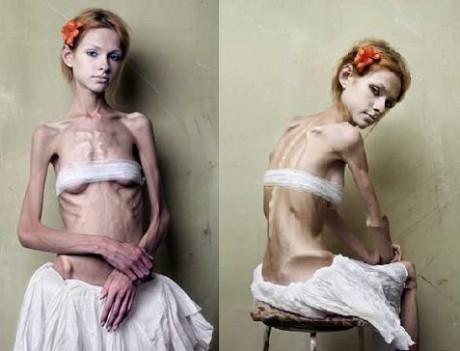 Анорексия (фото)
