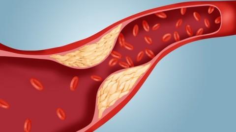 Излишки холестерина на внутренней стенке кровеносных сосудов