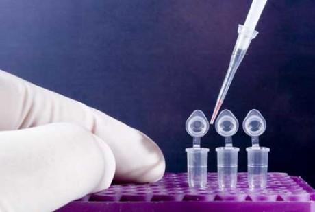 ПЦР-диагностика - анализ на инфекции