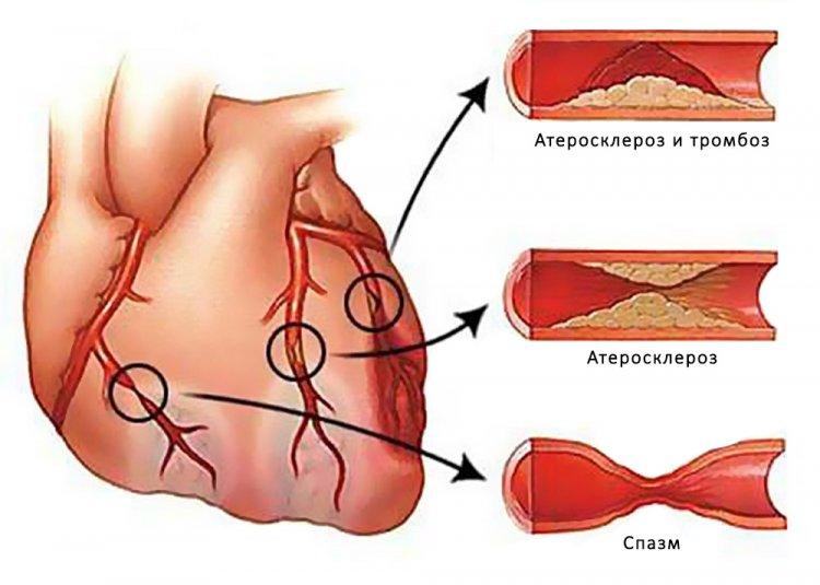 Причины возникновения приступов стенокардии