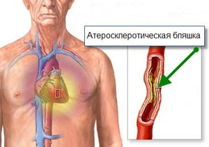 Атеросклеротическая бляшкa