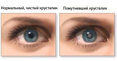 Здоровый и помутневший хрусталик (катаракта)