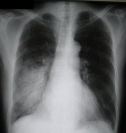Рентгеновское исследование при пневмонии