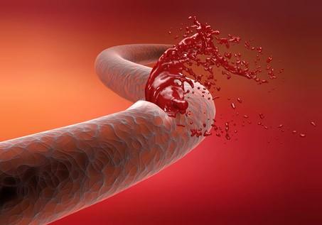 Гемофилия - наследственное заболевание, связанное с нарушением процессом свёртывания крови