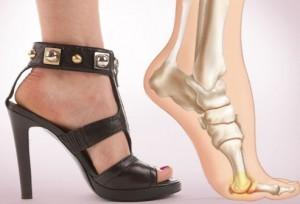 3ae9dae70 Какой вред несут высокие каблуки? Рекомендации по снижению вреда от  каблуков.