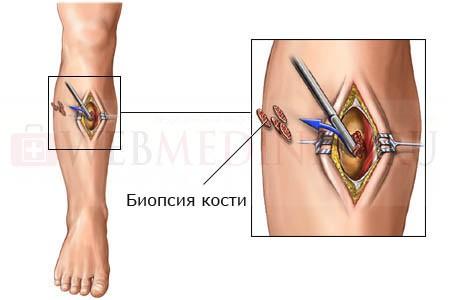 Биопсия кости - основной способ диагностика рака кости