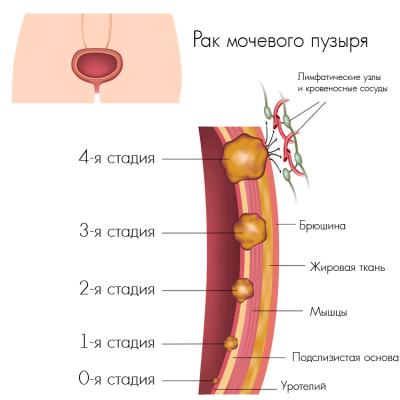 Стадии рака мочевого пузыря (схема)