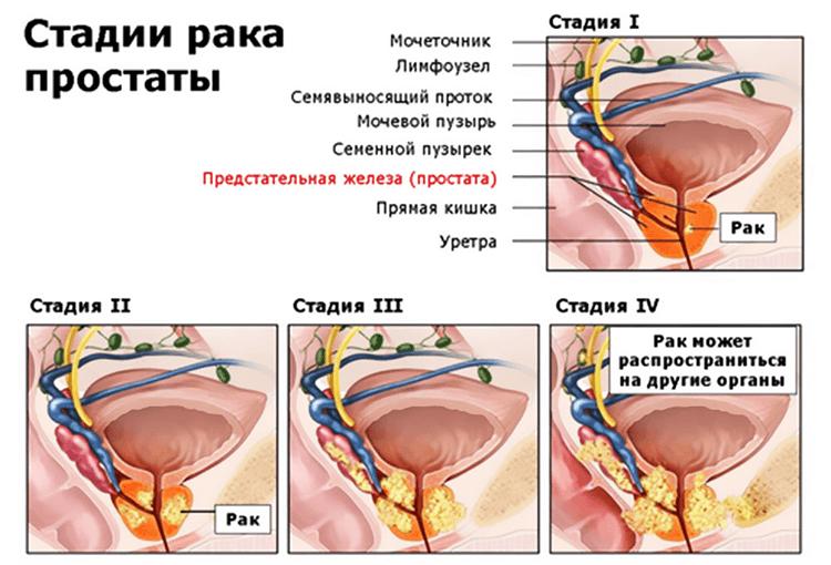 Стадии рака простаты (схема)