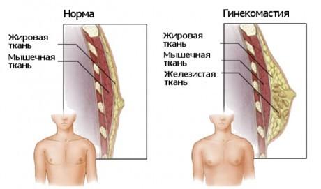 Признаки гинекомастии