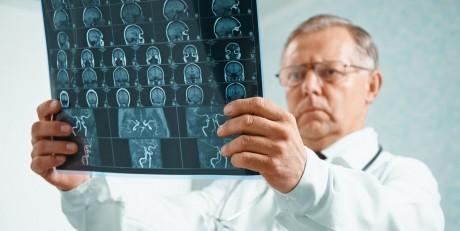 Головной рак опухоль и его лечения