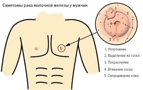 Основные симптомы рака молочной железы у мужчин