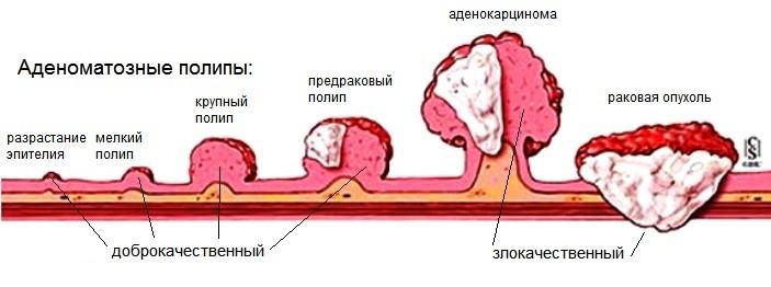 Виды полипов и опухолей
