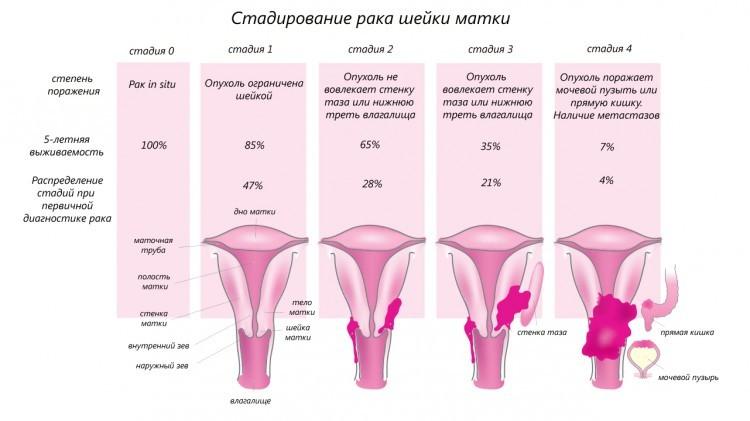5-тилетняя выживаемость в зависимости от стадии рака шейки матки