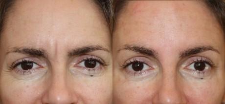 Инъекции ботокса против морщин: до и после (фото)