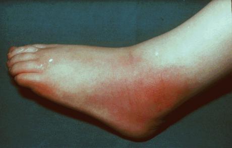 Септический артирит