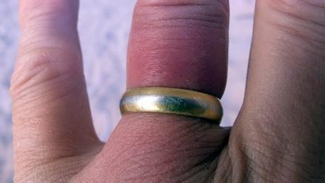 """положительный """"симптом кольца"""""""