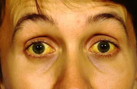 Пожелтевшие склеры глаз - симптом гепатита B