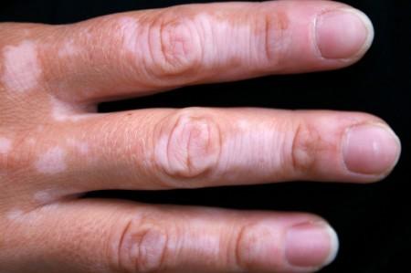 Пятна витилиго на пальцах руки