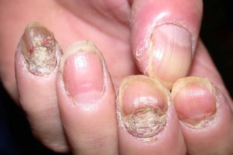 Псориаз ногтей (фото)