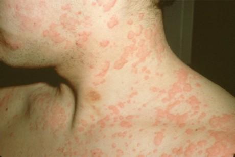 Симптомы крапивницы (фото)