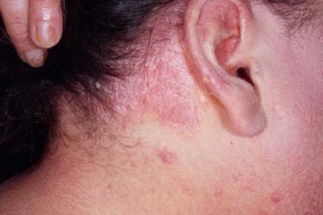 Псориаз на голове (фото)