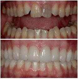 Реставрация зубов: до и после.