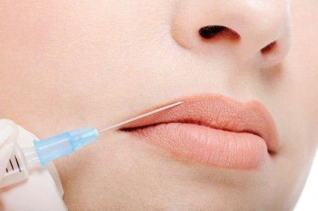Инъекции гиалуроновой кислоты для коррекции формы губ