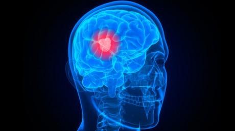 Новый способ лечения рака головного мозга